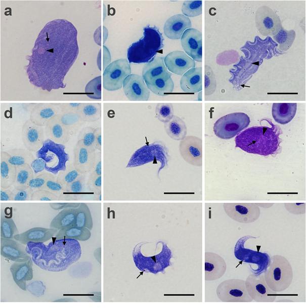 Trypanosomy